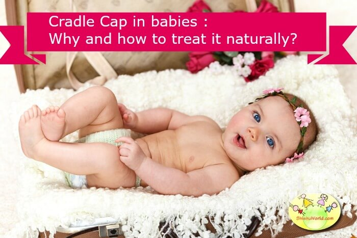 cradle cap treatment
