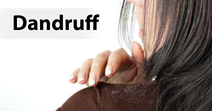 8 DIY Home Remedies to get rid of Dandruff